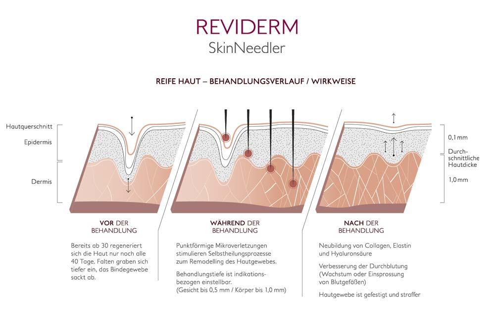 Reviderm Skin Needler Hautschichten